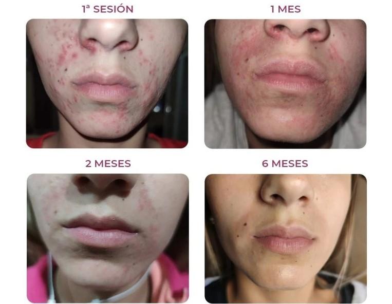 Resultados tratamiento acné de Ovaco